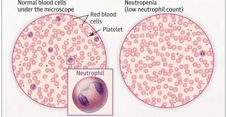 Какво е неутрофил и неутропения