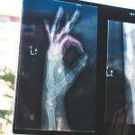 Рентгенова снимка ОК