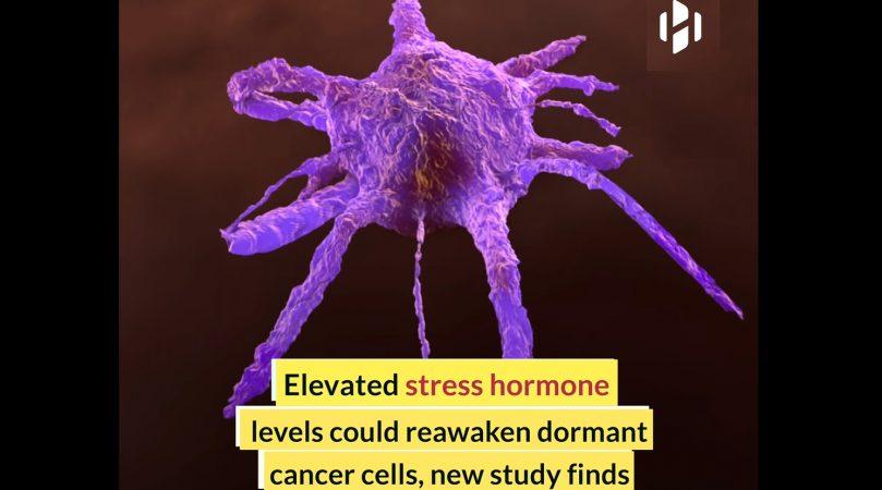 Стрес и рецидив